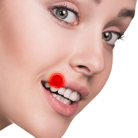 crusted: Herpes on the female lips isolated ower white background