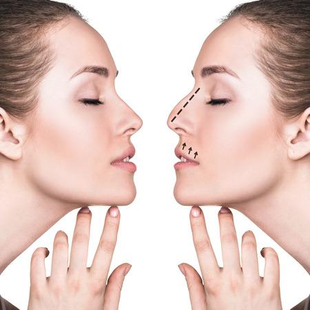 Weibliches Gesicht vor und nach der kosmetischen Nasenoperation isoliert auf weiß