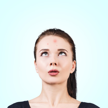 pus: Confuso ragazza alzando sulla sua fronte. concetto di pelle problema.