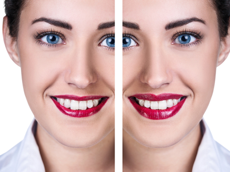 augmentation: Lips before and after filler injections isolated on white. Lips augmentation concept.