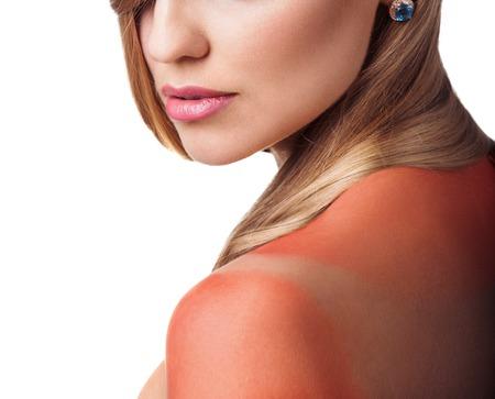 sunburn: Sunburn female shoulder isolated on white background