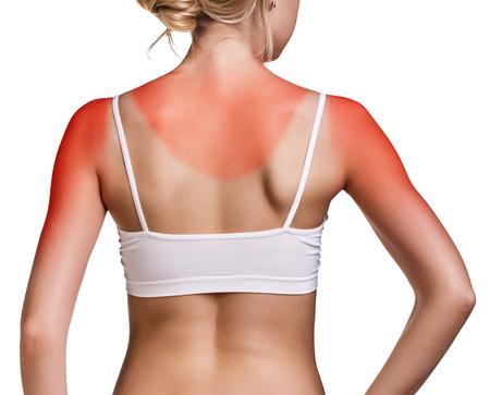 Sunburn weibliche Schulter isoliert auf weißem Hintergrund Lizenzfreie Bilder
