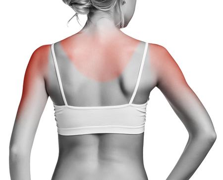 Zonnebrand vrouwelijke schouder op een witte achtergrond