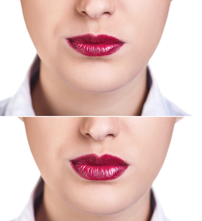 augmentation: Before and after lip filler injections. Fillers. Lip augmentation over white background