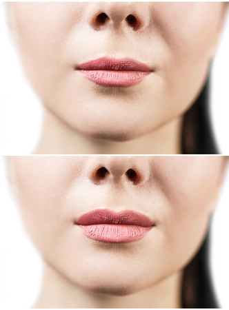 Antes y después de las inyecciones de relleno de labios. Materiales de carga. El aumento de labios sobre fondo blanco Foto de archivo