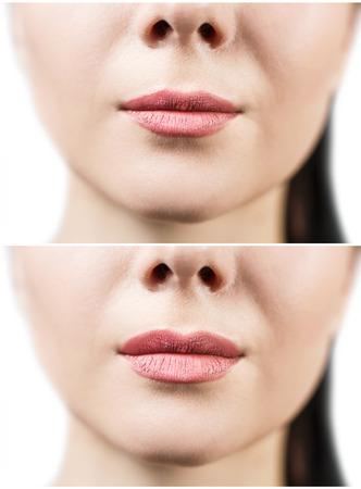 Voor en na lip filler injecties. Vulstoffen. Lipvergroting over witte achtergrond Stockfoto