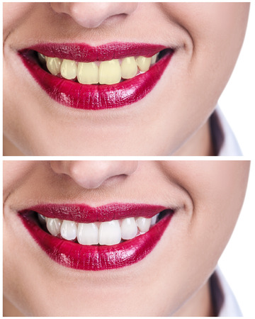 bleaching: Teeth before and after bleaching treatment. Whitening concept.
