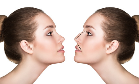 Female face, before and after cosmetic nose surgery isolated on white Stockfoto