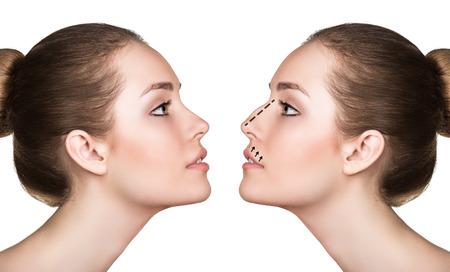 Weibliches Gesicht, vor und nach der kosmetischen Nasenoperation isoliert auf weiß