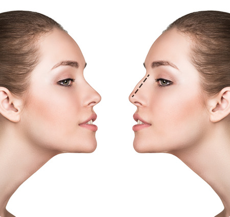 reconstructive: Female face, before and after cosmetic nose surgery isolated on white Stock Photo