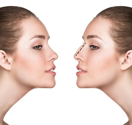 Kobieta twarz, przed i po operacji plastycznej nosa odizolowane na białym Zdjęcie Seryjne