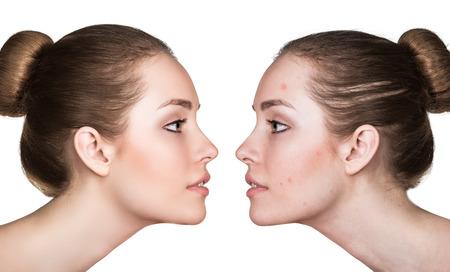 Comparación retrato de una mujer con la piel problemática antes y después del tratamiento Foto de archivo - 59932562