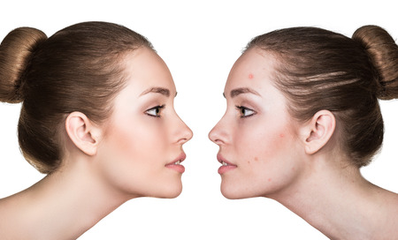 Comparaison portrait d'une femme à la peau problématique avant et après traitement