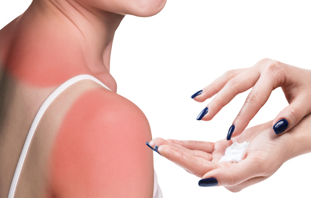 smears: Woman smears cream on the sunburn shoulder of a young woman Stock Photo