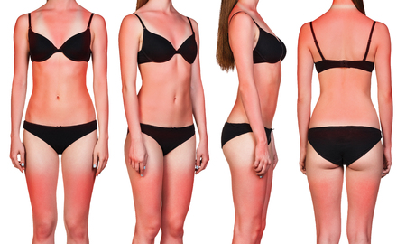 overexposed: Womans body with a bad case of sunburn isolated on white background Stock Photo
