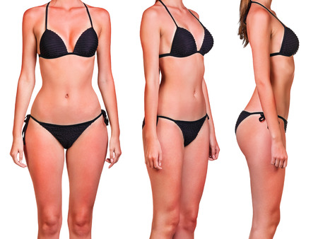 Womans body with a bad case of sunburn isolated on white background Stock Photo