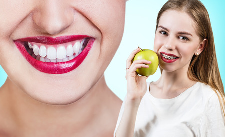 overbite: Beautiful young woman with brackets on teeth eating apple. Before and after concept