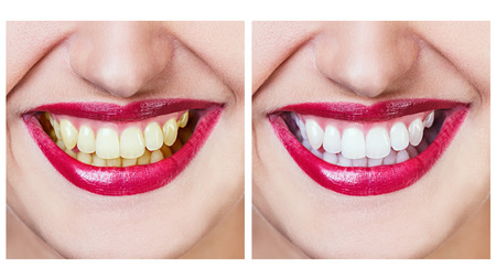 Whitening - bleaching treatment ,before and after ,woman teeth and smile isolated on white Stock Photo