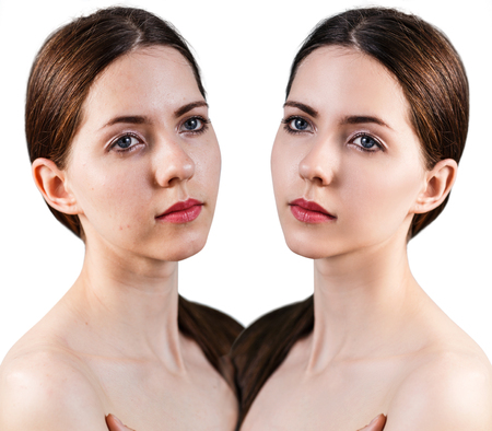 retouch: Woman with problem skin on her face before and after treatment isolated on white