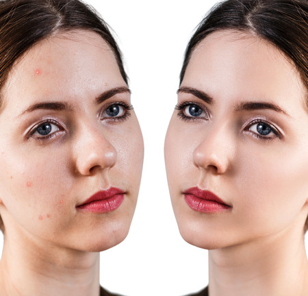 Woman with problem skin on her face before and after treatment isolated on white Stock Photo