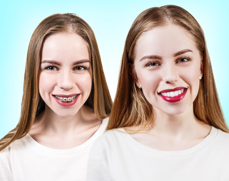 perfect teeth: Young woman with perfect teeth before and after braces over blue background