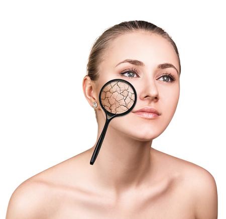 Fronte di giovane donna con la pelle secca. Concetto di trattamento e la cura della pelle.