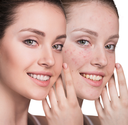 Woman with problem skin on her face before and after treatment, over white background Reklamní fotografie