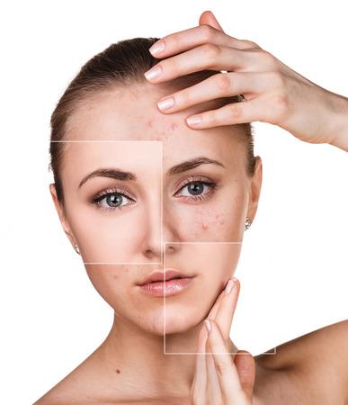 Frau mit Problemhaut auf ihrem Gesicht vor und nach der Behandlung über weißem Hintergrund Standard-Bild