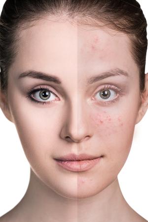 Frau mit Problemhaut auf ihrem Gesicht vor und nach der Behandlung über weißem Hintergrund Standard-Bild - 63814757