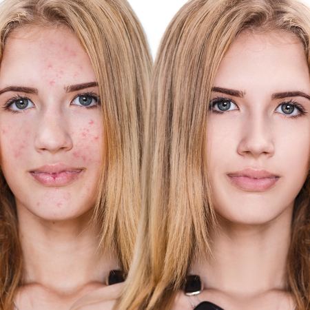 Comparison portrait of young girl with problematic skin before and after treatment