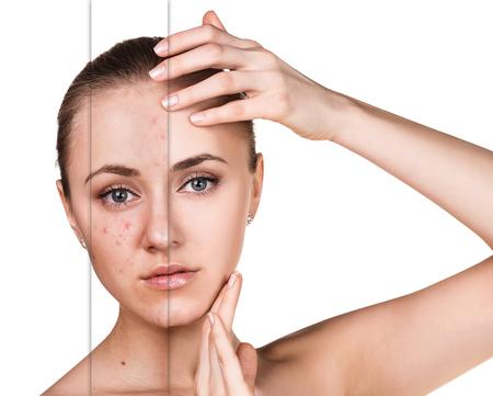 Frau mit Problemhaut auf ihrem Gesicht vor und nach der Behandlung über weißem Hintergrund Standard-Bild - 64588380