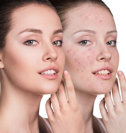 彼女の顔は、白い背景の上の治療前後にトラブル肌を持つ女性 写真素材