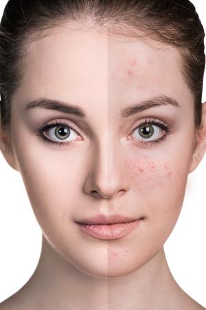Frau mit Problemhaut auf ihrem Gesicht vor und nach der Behandlung über weißem Hintergrund