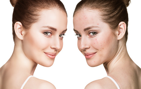 Comparison portrait of young girl with problematic skin before and after treatment Imagens - 64668378
