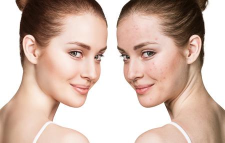 female head: retrato de la comparación de la joven con la piel problemática antes y después del tratamiento