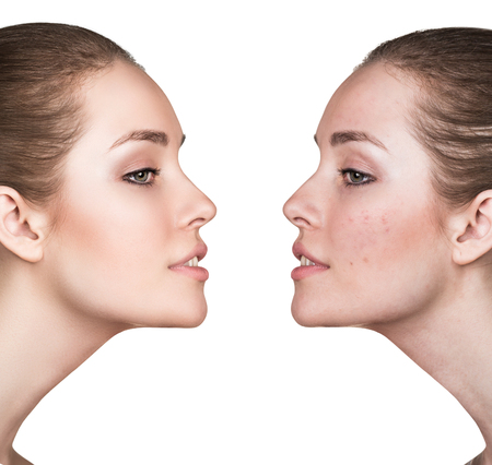 closeup view: Comparison portrait of young girl with problematic skin before and after treatment