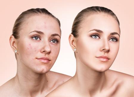 전과 치료 후 문제가 피부를 가진 어린 소녀의 비교 초상화