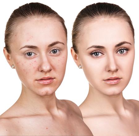 白い背景の上の治療の前後に彼女の顔にトラブル肌を持つ女性