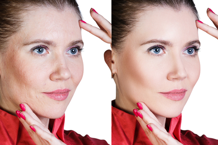 transformation: Middle aged woman with aging singes, wrinkles, blemishes. Before and after cosmetic procedure.