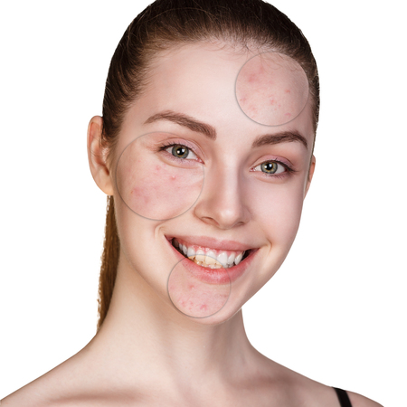 Portrait of young woman with circles shows problem skin