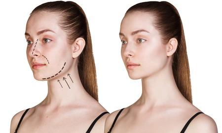 얼굴에 화살표와 함께 아름 다운 젊은 여자. Cosmitic 절차 개념입니다. 스톡 콘텐츠