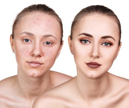 Frau mit Problemhaut auf ihrem Gesicht vor und nach der Behandlung über weißem Hintergrund Standard-Bild - 66030839