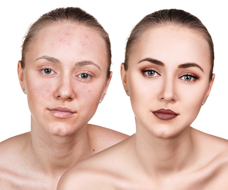 Woman with problem skin on her face before and after treatment over white background 版權商用圖片 - 66030839