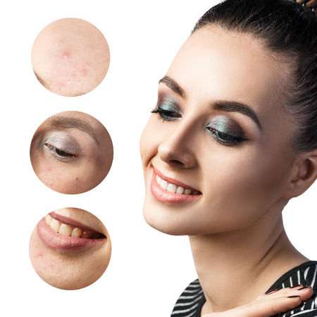 Portrait of young woman and circles shows problem skin