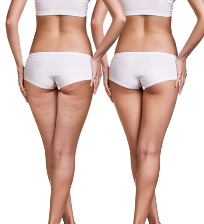 Female before and after cellulite skin isolated on white