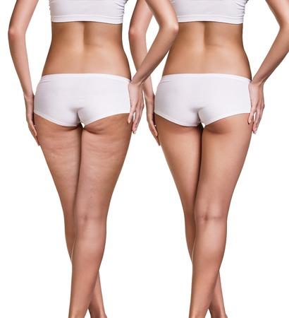 Nádegas femininas antes e depois da pele celulite isolada no branco Foto de archivo