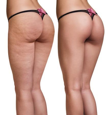 traitement: fesses des femmes avant et après la peau cellulite isolé sur blanc