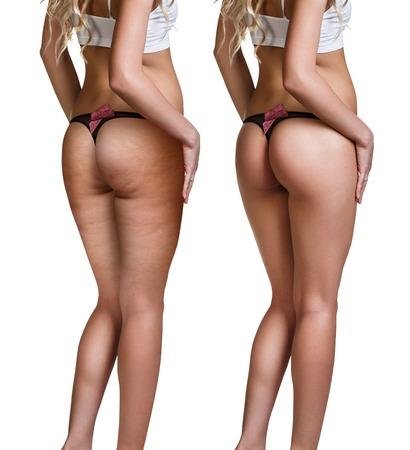 Weibliche Gesäß vor und nach der Cellulite Haut isoliert auf weiß Standard-Bild - 68291331