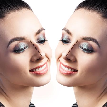 흰색 배경 위에 성형 코 수술 전후의 여성 얼굴. 스톡 콘텐츠