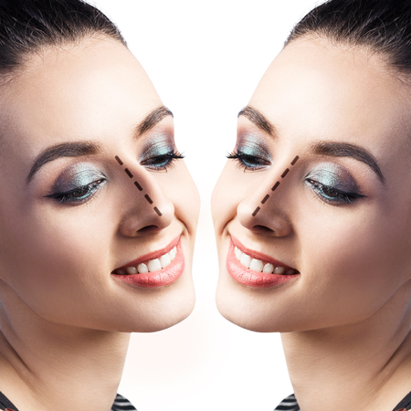 Female face before and after cosmetic nose surgery over white background. Stock Photo